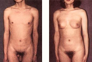 Estrogen transvestite male side effects, hentia girl into sexy furry
